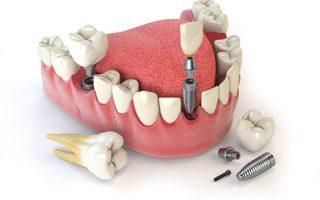 http://www.praxis-dr-gaitzsch.de/wp-content/uploads/2015/11/Implantologie-320x200.jpg
