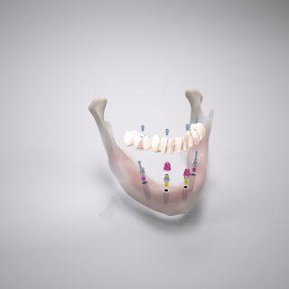 Kunststoff oder Keramik? Das Comfour-System ist für jeden Zahnersatz-Arten geeignet.