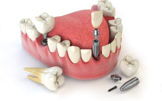 https://www.praxis-dr-gaitzsch.de/wp-content/uploads/2015/11/Implantologie-320x200.jpg