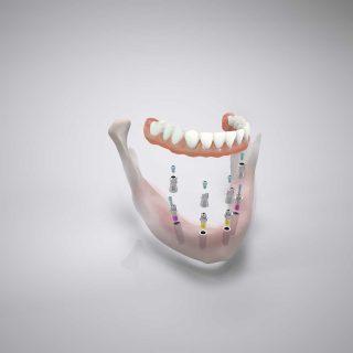 Das Camlog Comfour-System - 4 Implantate reichen aus, um die festen Dritten im Kiefer zu verankern